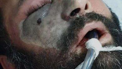 صورة بعد شائعات  انتشاره في مصر وموت سمير غانم به.. ما هو مرض الفطر الأسود وما خطورته وما علاقته بكورونا ؟